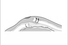 Figura_011